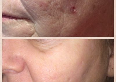 Dermal Needling